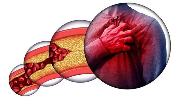 Máu nhiễm mỡ có thể làm suy tim