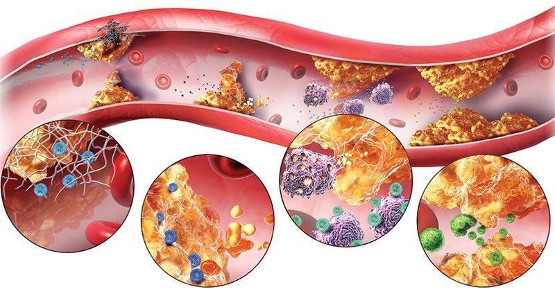 Rối loạn mỡ máu gây xơ vữa động mạch