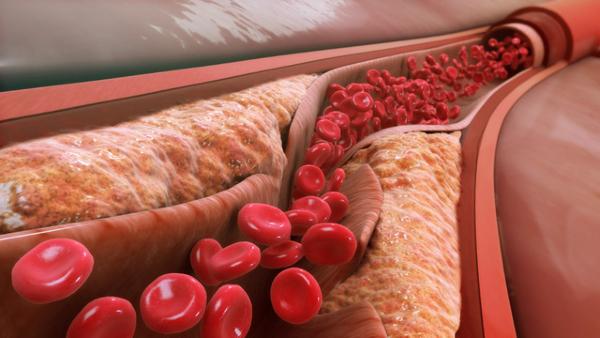 Những loại thuốc giúp giảm mỡ máu cao hiệu quả